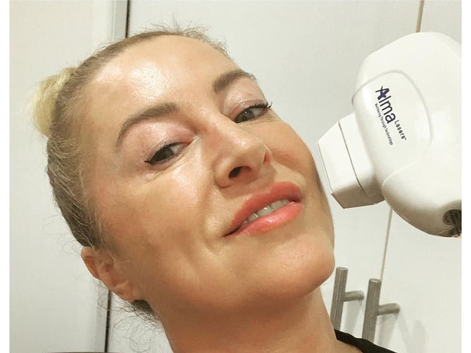 Gina Collins Laser Hair Removal