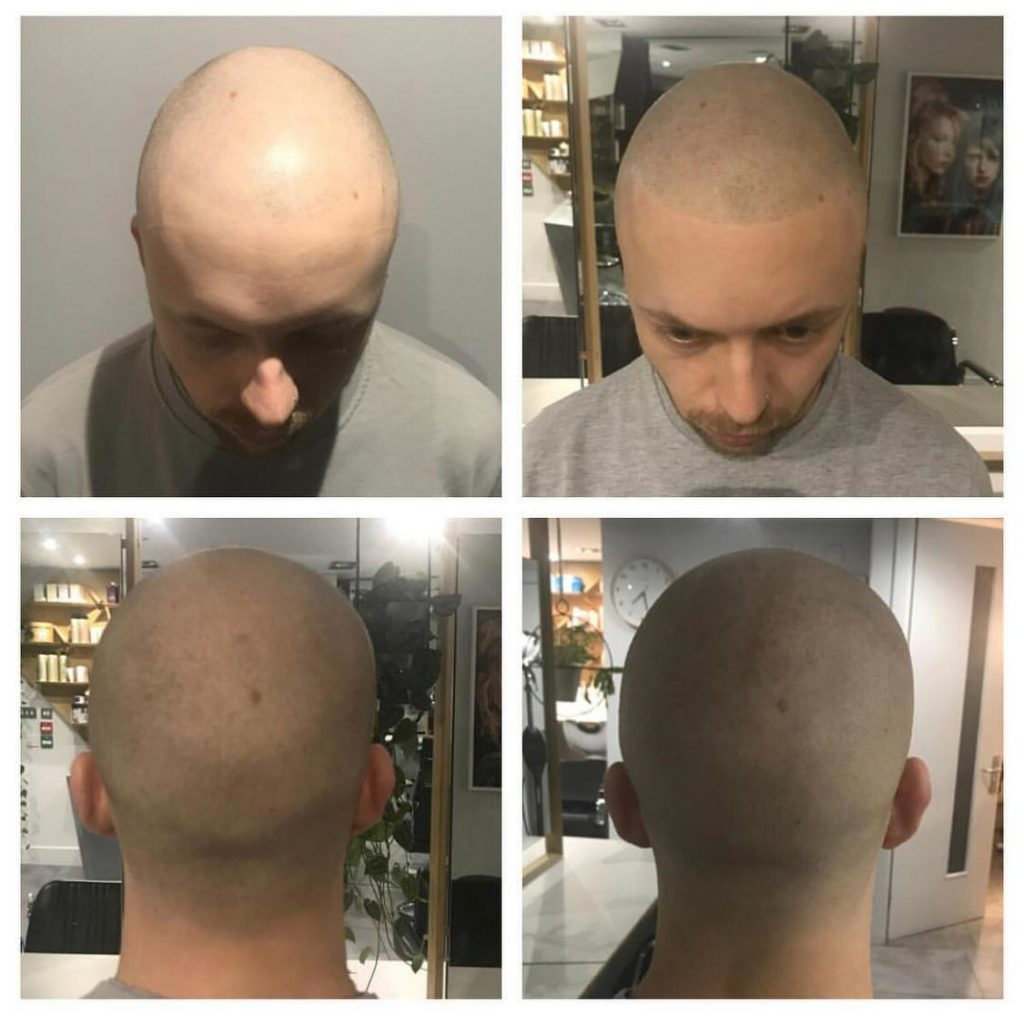 Scalp pigmentation - How it works